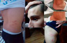 Los juveniles del Torredonjimeno sufren agresiones en Almería